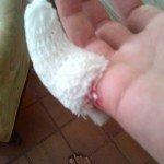 Ouverture du doigt